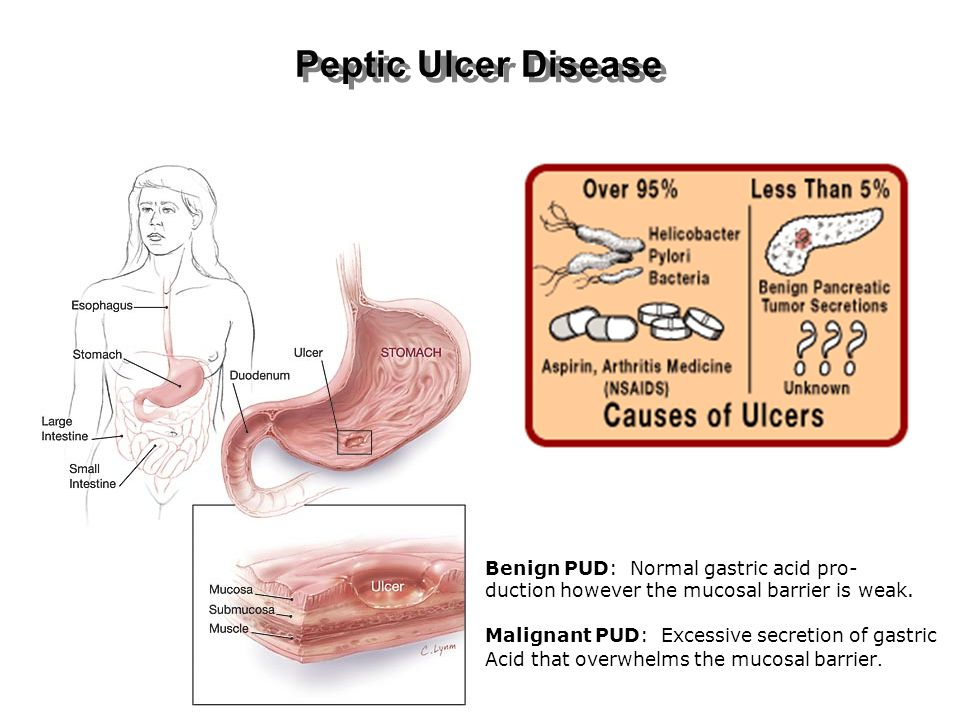 Peptic Ulcer Disease Benign PUD: Normal gastric acid pro-