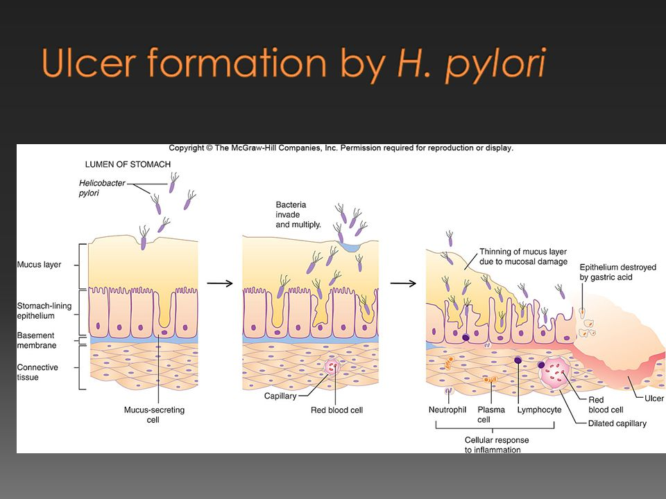 Ulcer formation by H. pylori