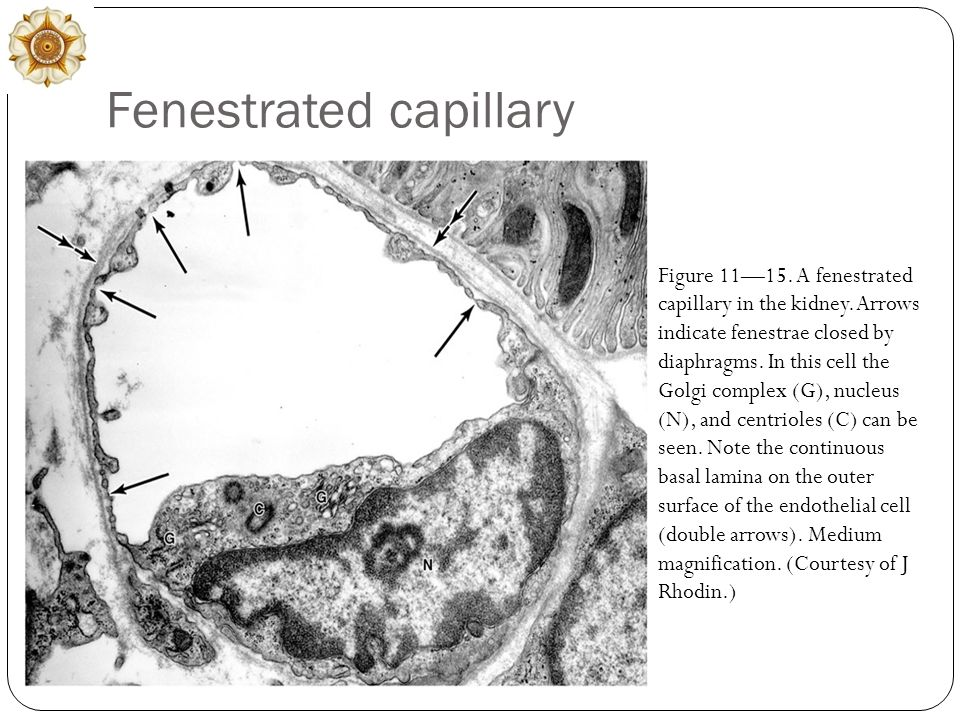 Fenestrated capillary