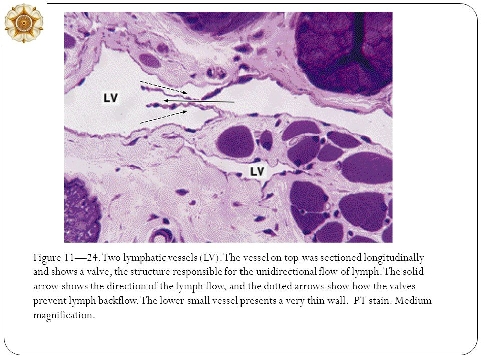 Figure 11—24. Two lymphatic vessels (LV)
