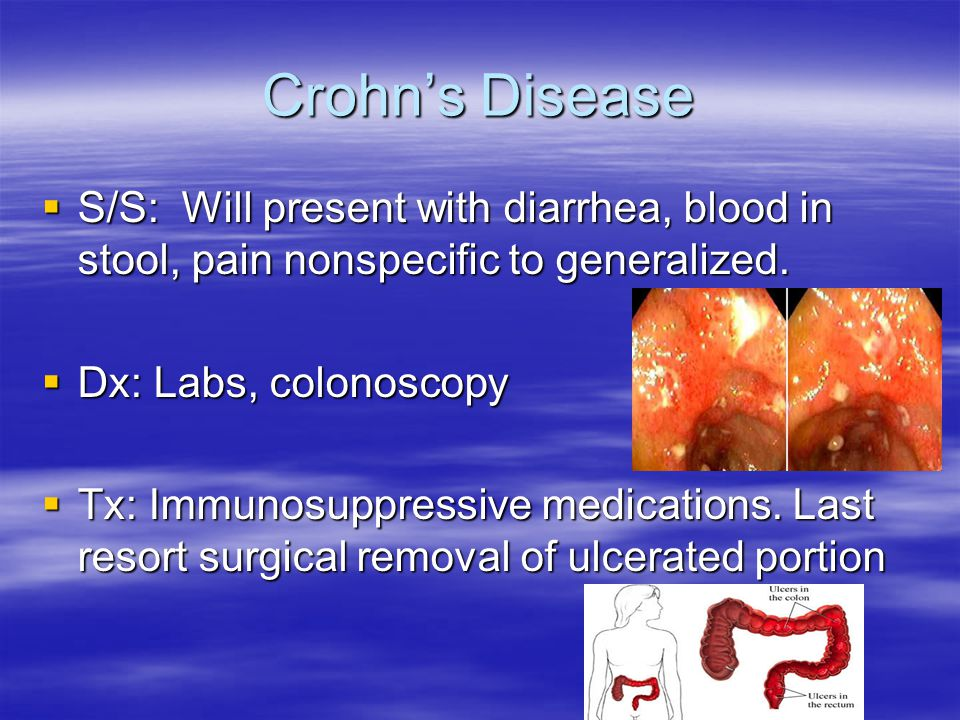 Crohn's Disease S/S: Will present with diarrhea, blood in stool, pain nonspecific to generalized. Dx: Labs, colonoscopy.