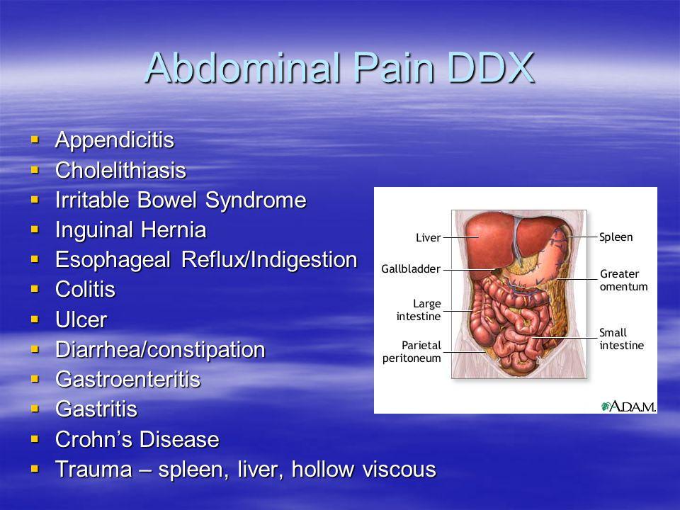 Abdominal Pain DDX Appendicitis Cholelithiasis
