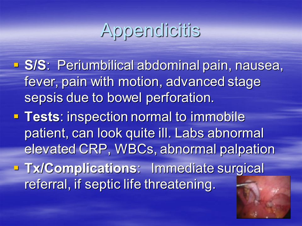 Appendicitis S/S: Periumbilical abdominal pain, nausea, fever, pain with motion, advanced stage sepsis due to bowel perforation.