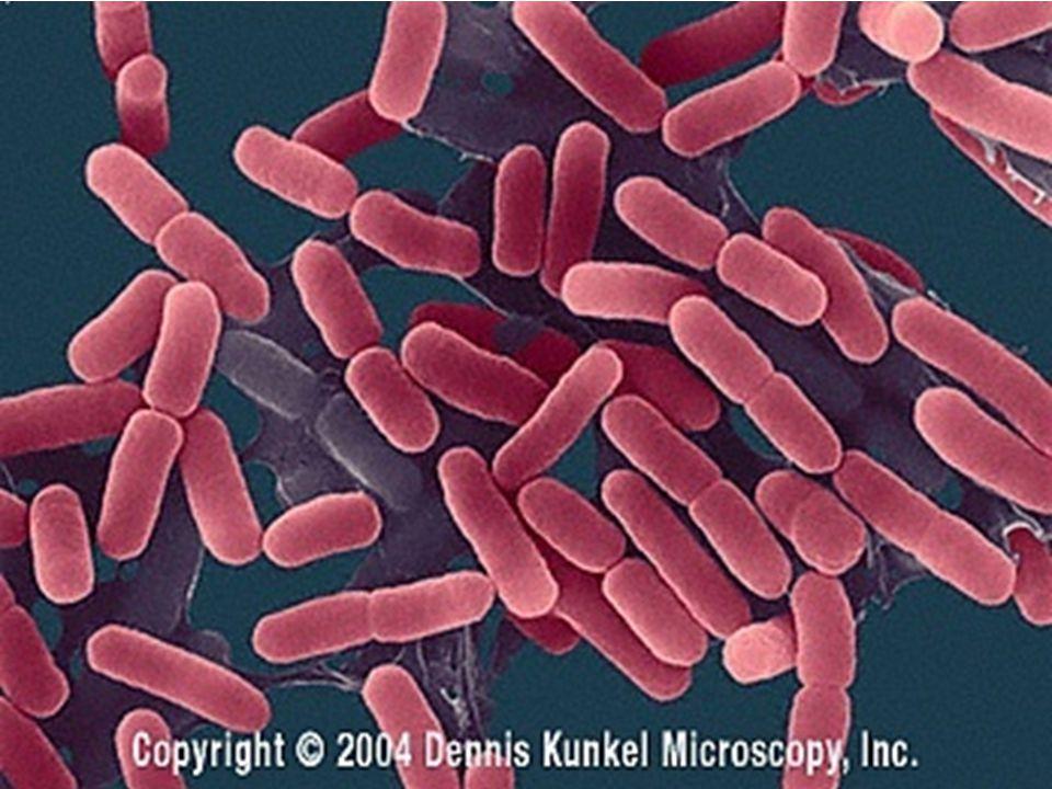 Caption: E. coli Escherichia coli