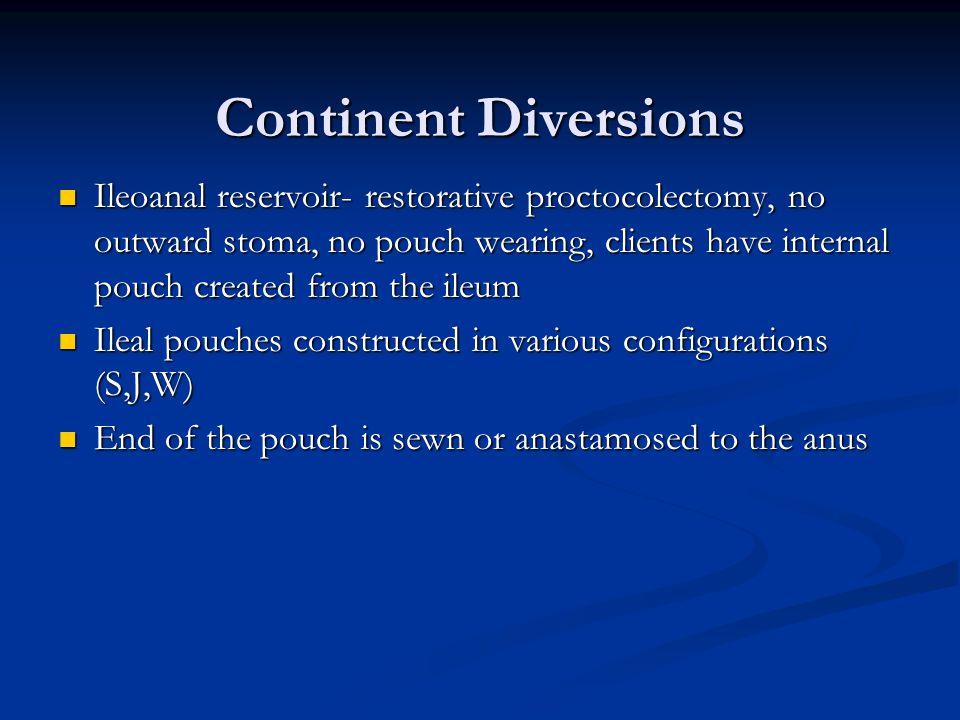 Continent Diversions