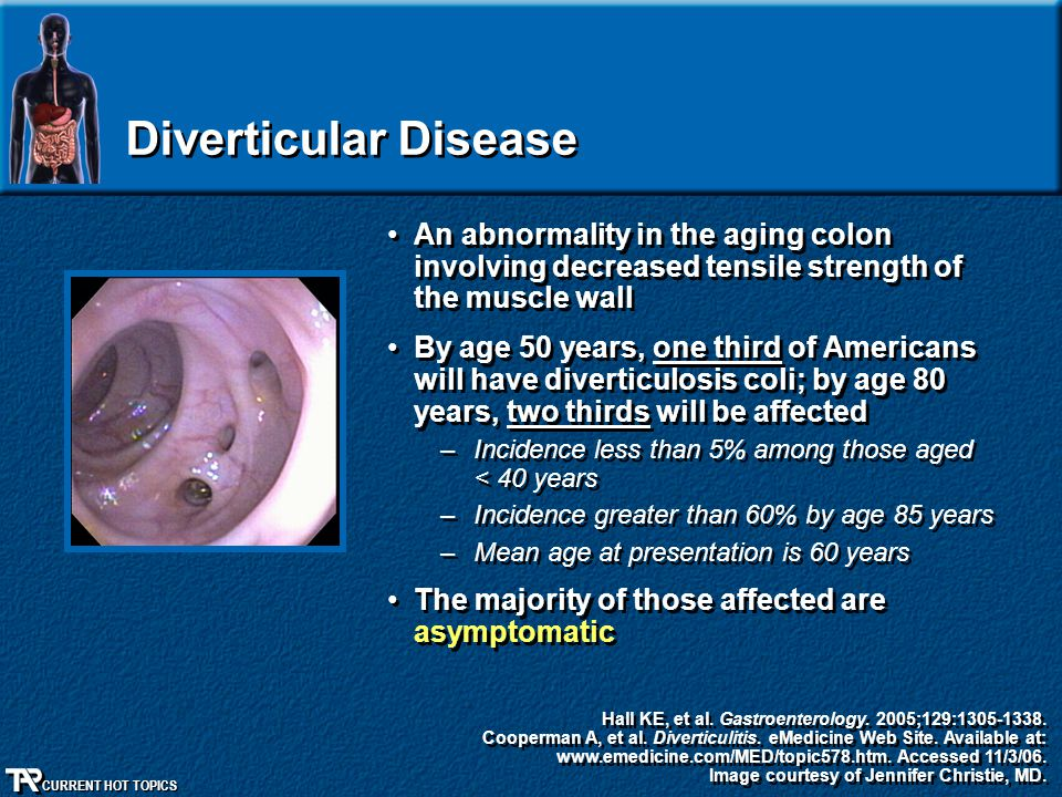 Diverticular Disease An abnormality in the aging colon involving decreased tensile strength of the muscle wall.