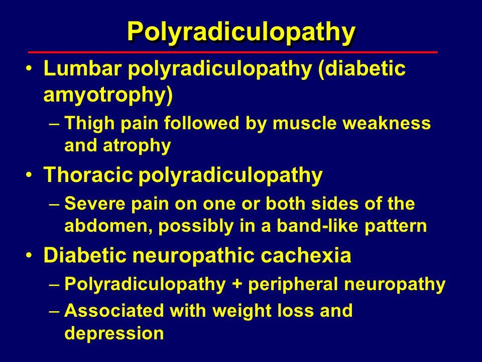 Polyradiculopathy Lumbar polyradiculopathy (diabetic amyotrophy)