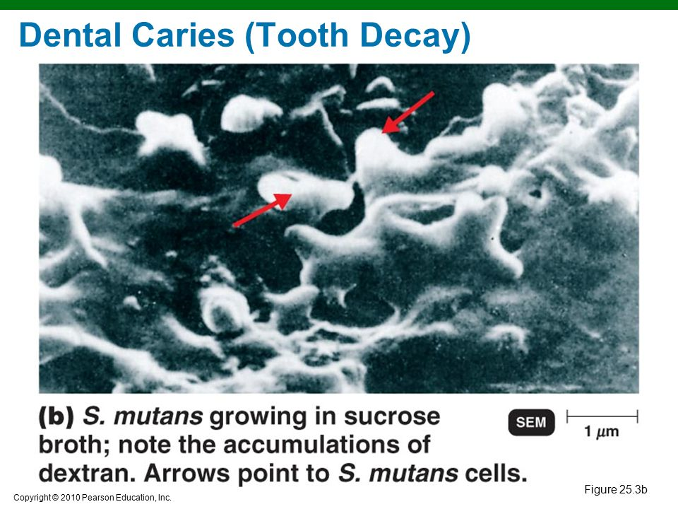 Dental Caries (Tooth Decay)
