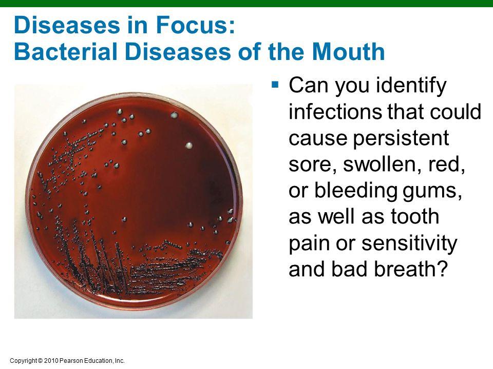 Diseases in Focus: Bacterial Diseases of the Mouth