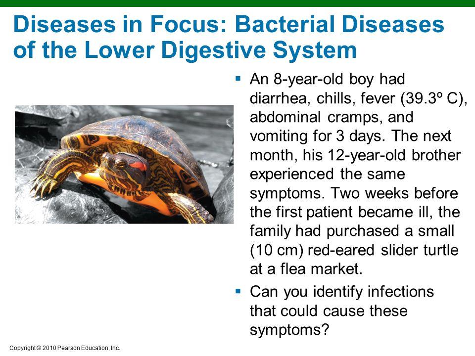 Diseases in Focus: Bacterial Diseases of the Lower Digestive System