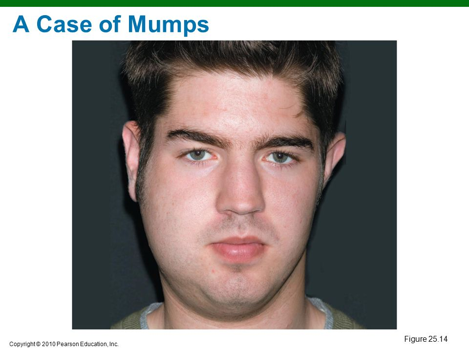 A Case of Mumps Figure 25.14