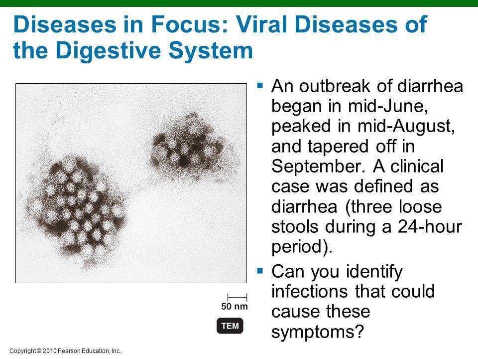 Diseases in Focus: Viral Diseases of the Digestive System