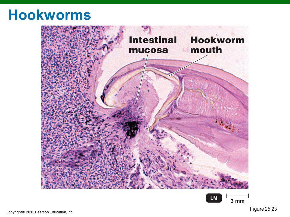 Hookworms Figure 25.23