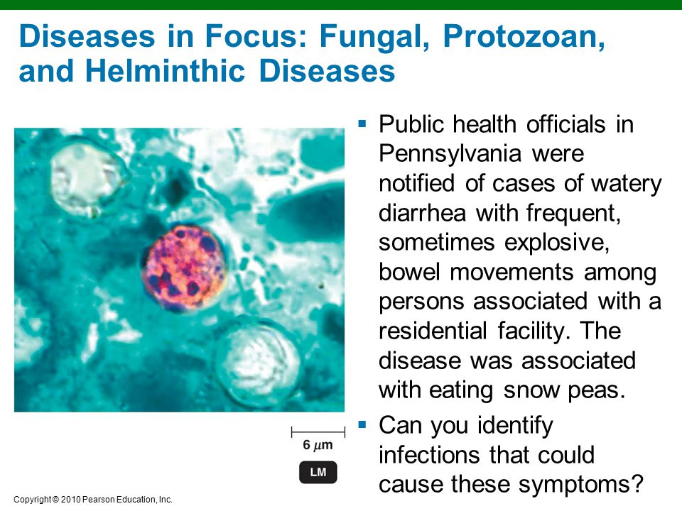 Diseases in Focus: Fungal, Protozoan, and Helminthic Diseases