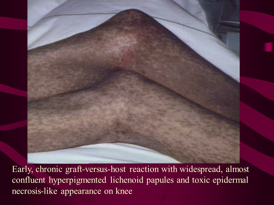Early, chronic graft-versus-host reaction with widespread, almost confluent hyperpigmented lichenoid papules and toxic epidermal necrosis-like appearance on knee