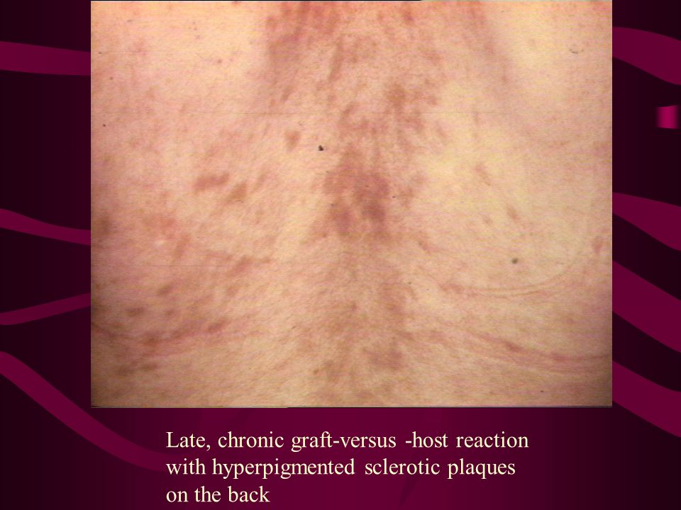 Late, chronic graft-versus -host reaction with hyperpigmented sclerotic plaques on the back