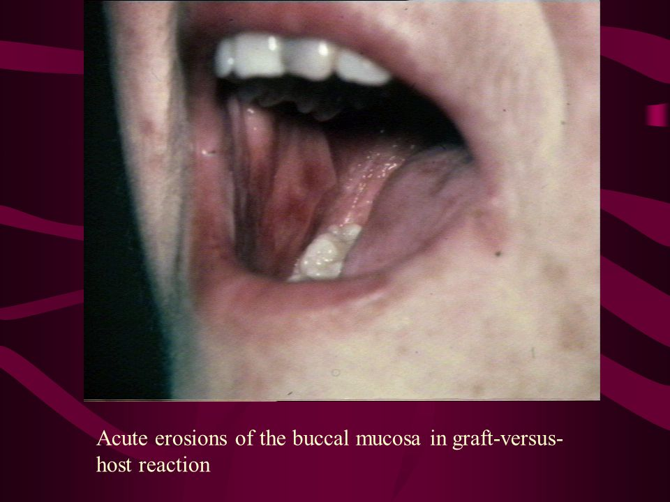 Acute erosions of the buccal mucosa in graft-versus-host reaction