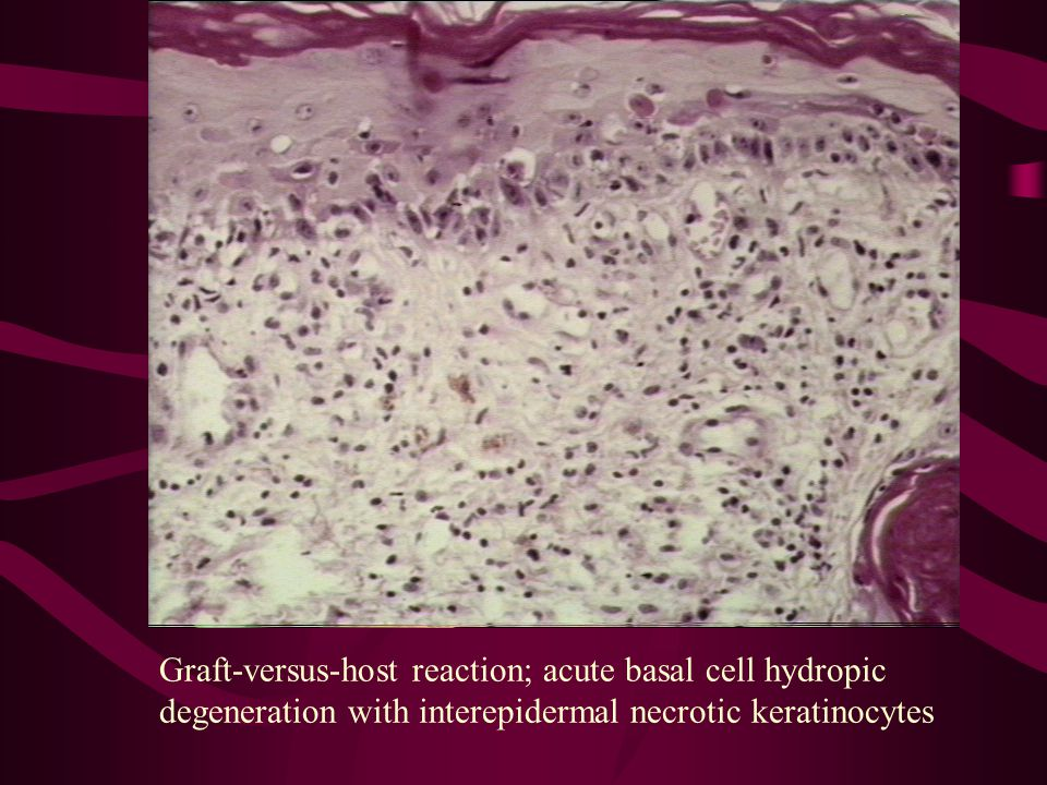 Graft-versus-host reaction; acute basal cell hydropic degeneration with interepidermal necrotic keratinocytes