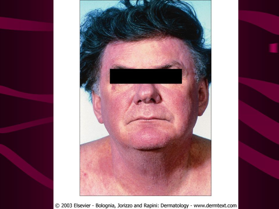 Adult with atopic dermatitis that favors the face and neck