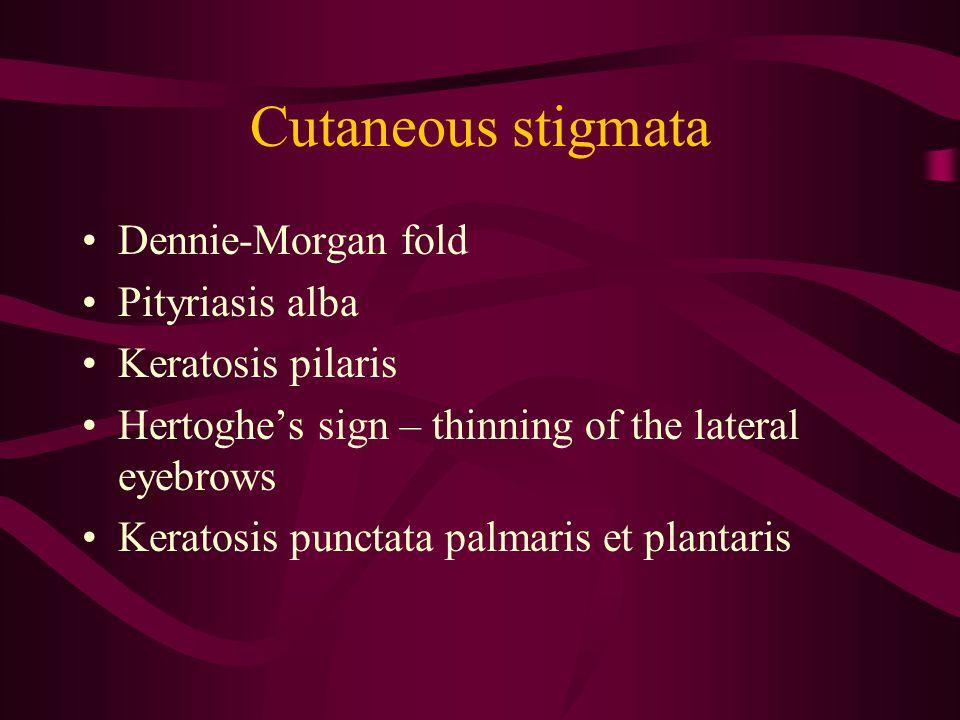 Cutaneous stigmata Dennie-Morgan fold Pityriasis alba