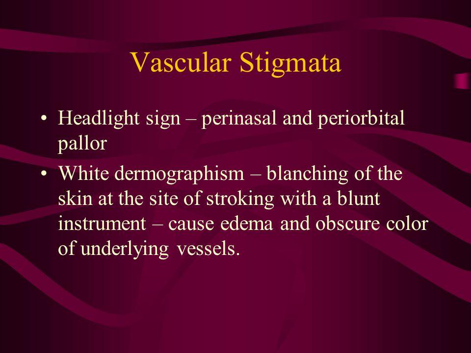 Vascular Stigmata Headlight sign – perinasal and periorbital pallor