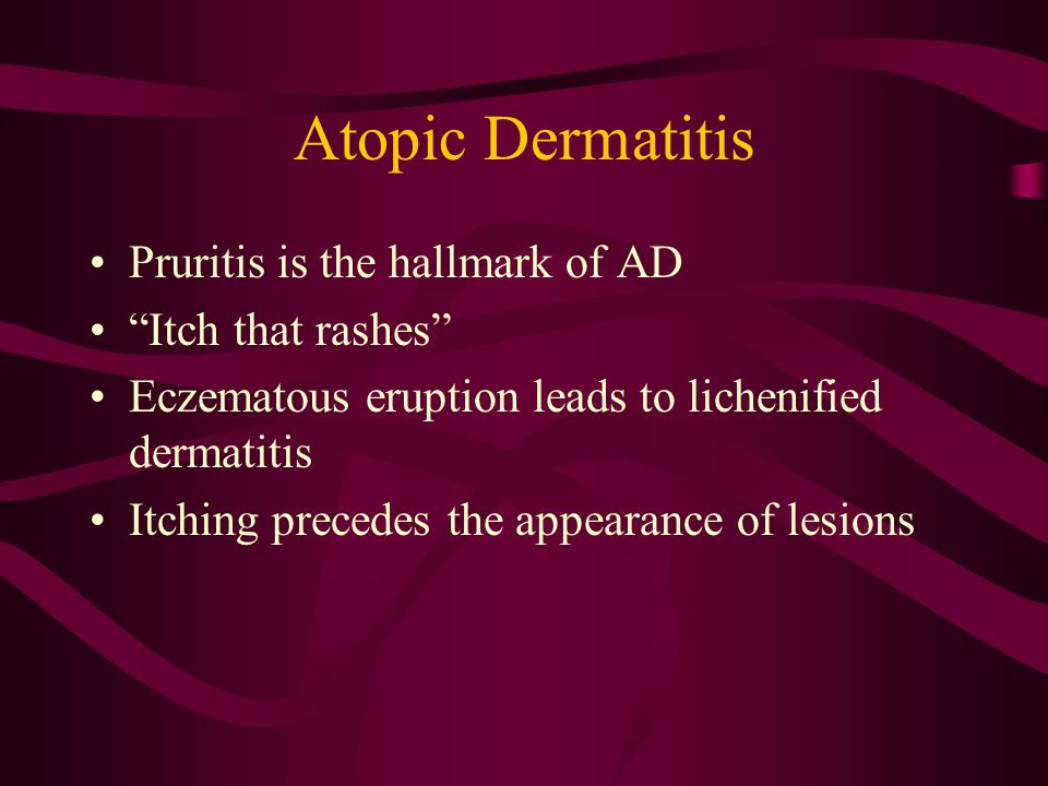 Atopic Dermatitis Pruritis is the hallmark of AD Itch that rashes