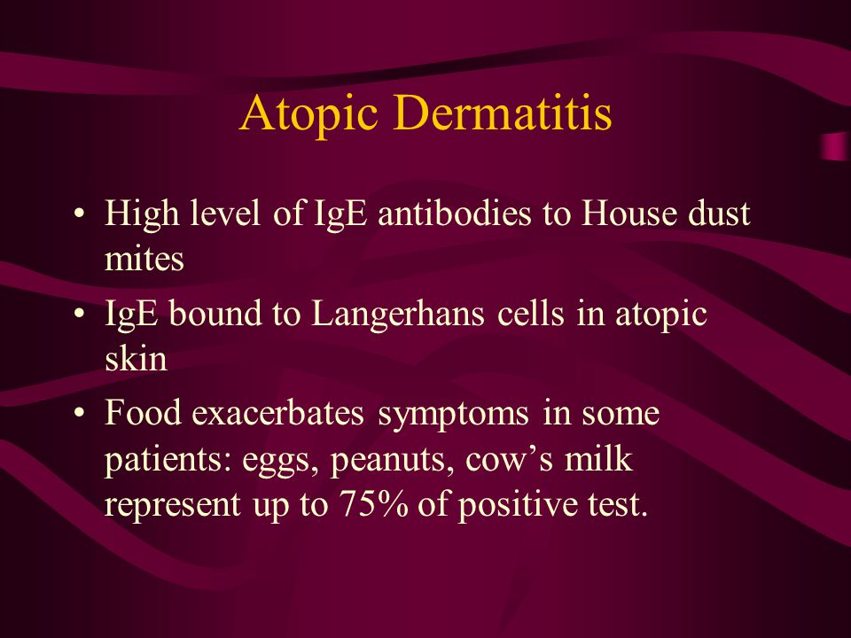 Atopic Dermatitis High level of IgE antibodies to House dust mites