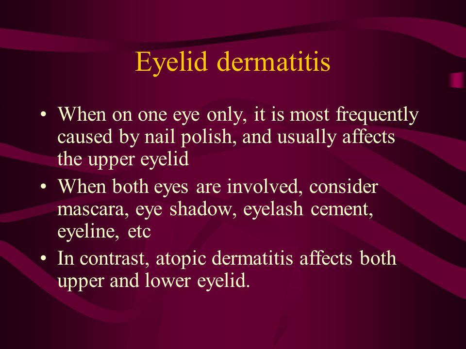 Eyelid dermatitis When on one eye only, it is most frequently caused by nail polish, and usually affects the upper eyelid.