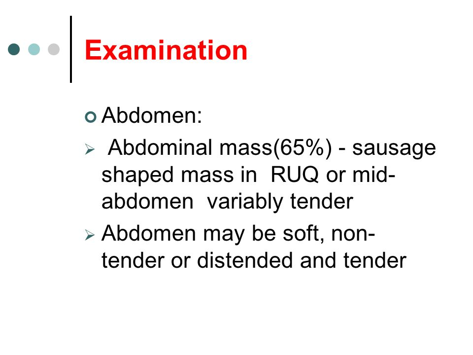 Examination Abdomen: Abdominal mass(65%) - sausage shaped mass in RUQ or mid-abdomen variably tender.