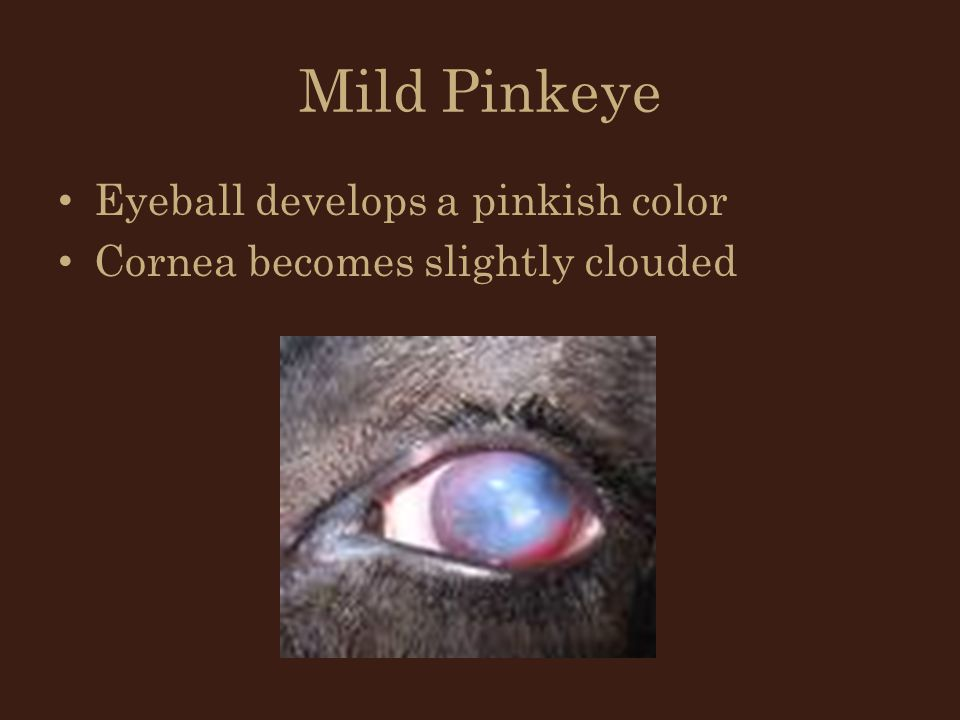 Mild Pinkeye Eyeball develops a pinkish color