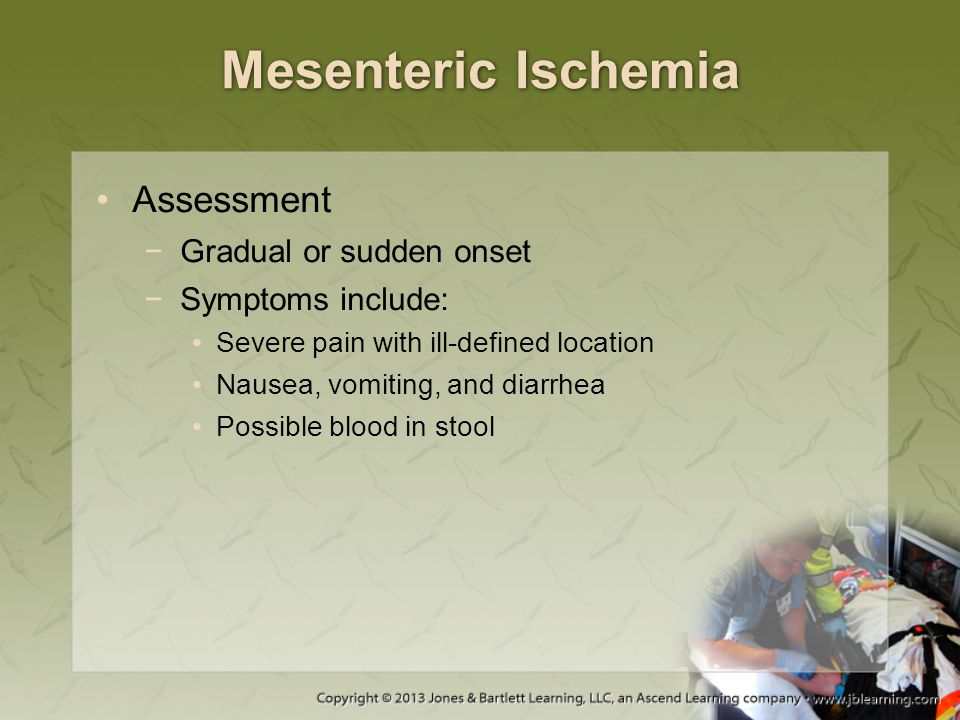 Mesenteric Ischemia Assessment Gradual or sudden onset