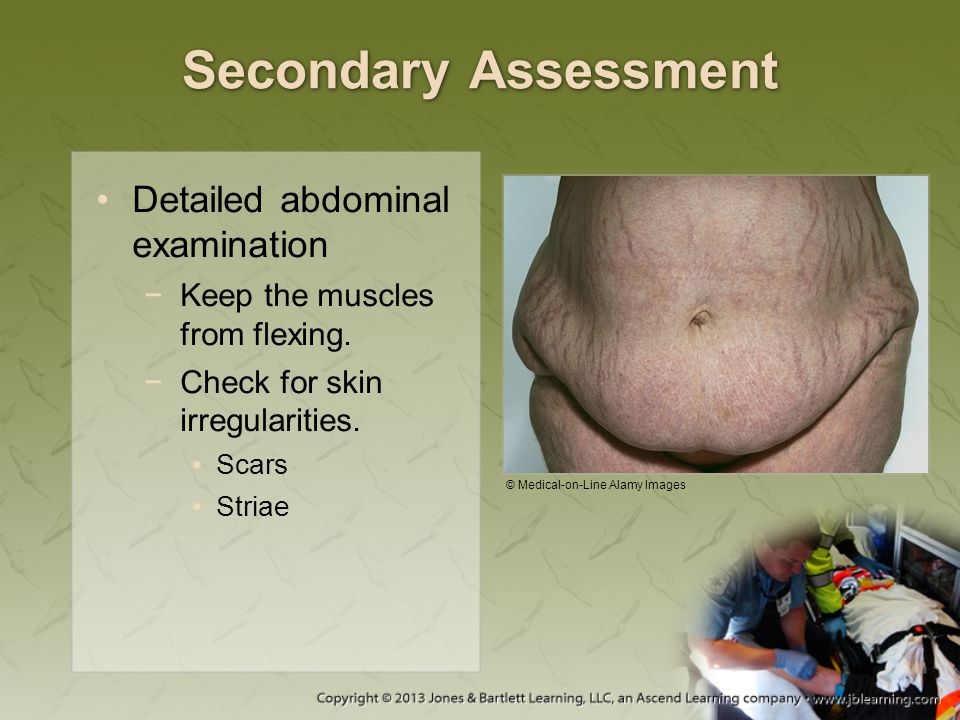 Secondary Assessment Detailed abdominal examination