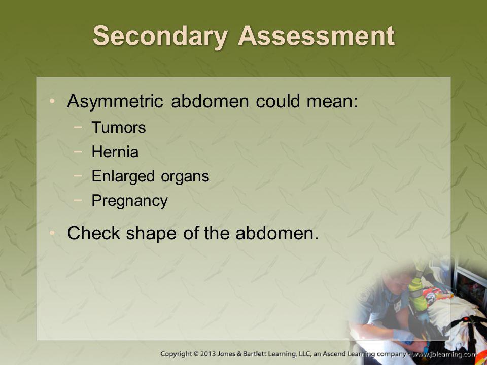 Secondary Assessment Asymmetric abdomen could mean: