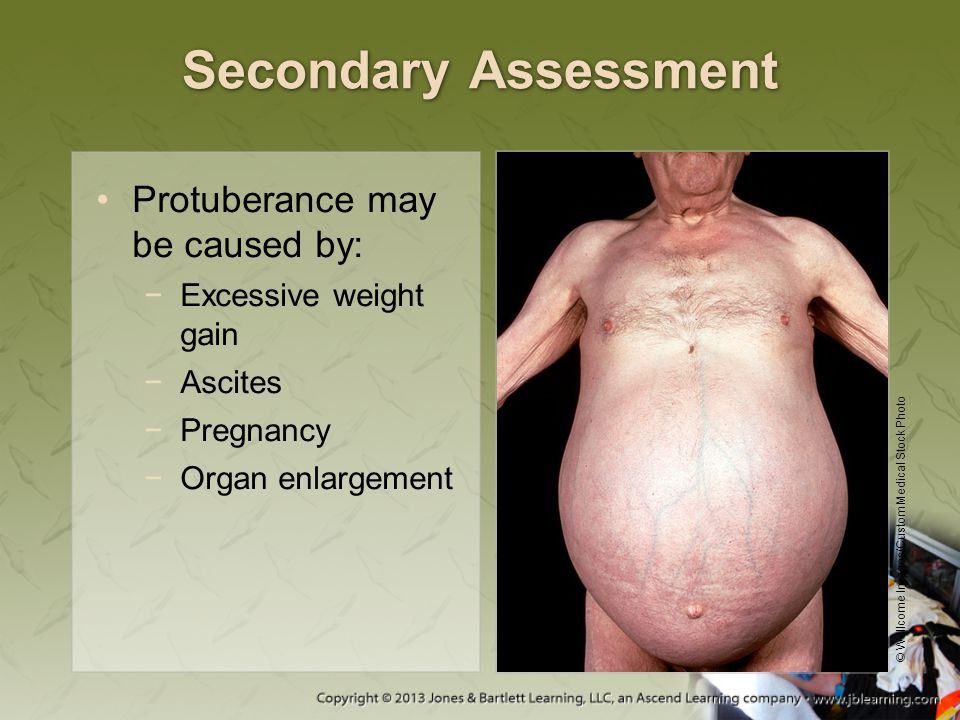 Secondary Assessment Protuberance may be caused by: