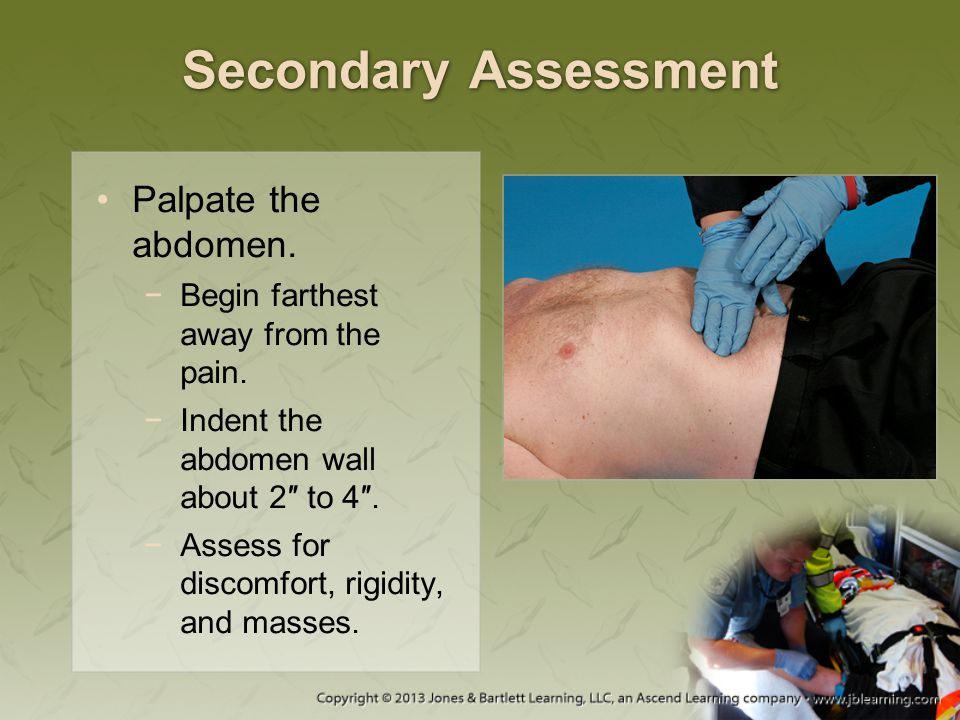 Secondary Assessment Palpate the abdomen.