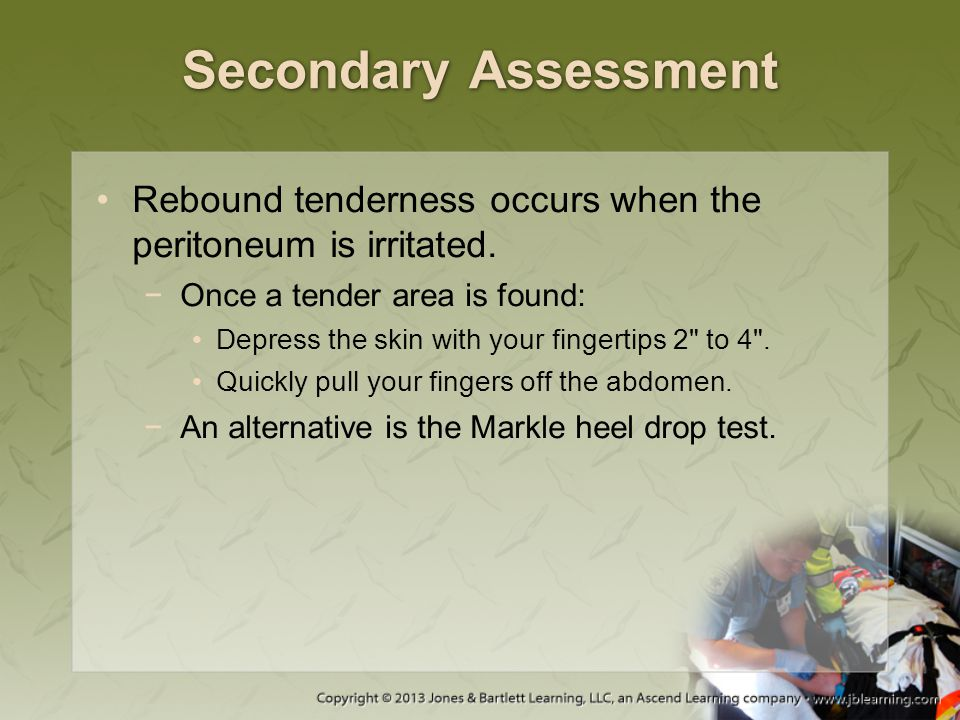 Secondary Assessment Rebound tenderness occurs when the peritoneum is irritated. Once a tender area is found: