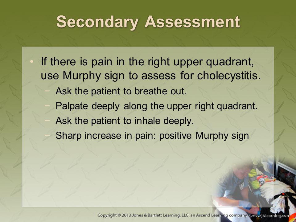 Secondary Assessment If there is pain in the right upper quadrant, use Murphy sign to assess for cholecystitis.