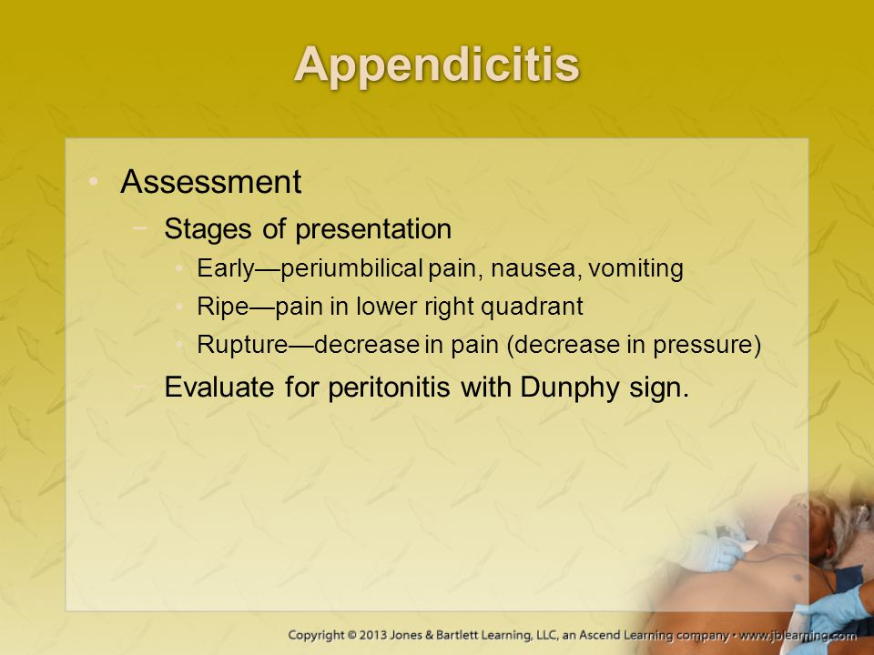 Appendicitis Assessment Stages of presentation