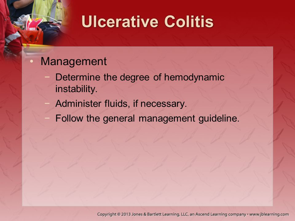 Ulcerative Colitis Management