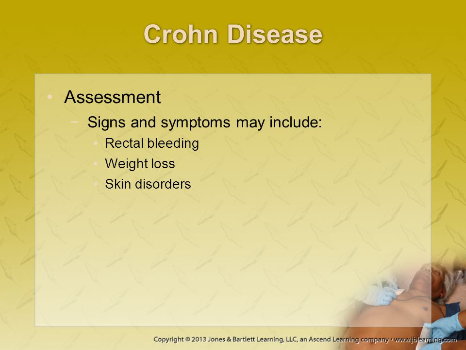 Crohn Disease Assessment Signs and symptoms may include: