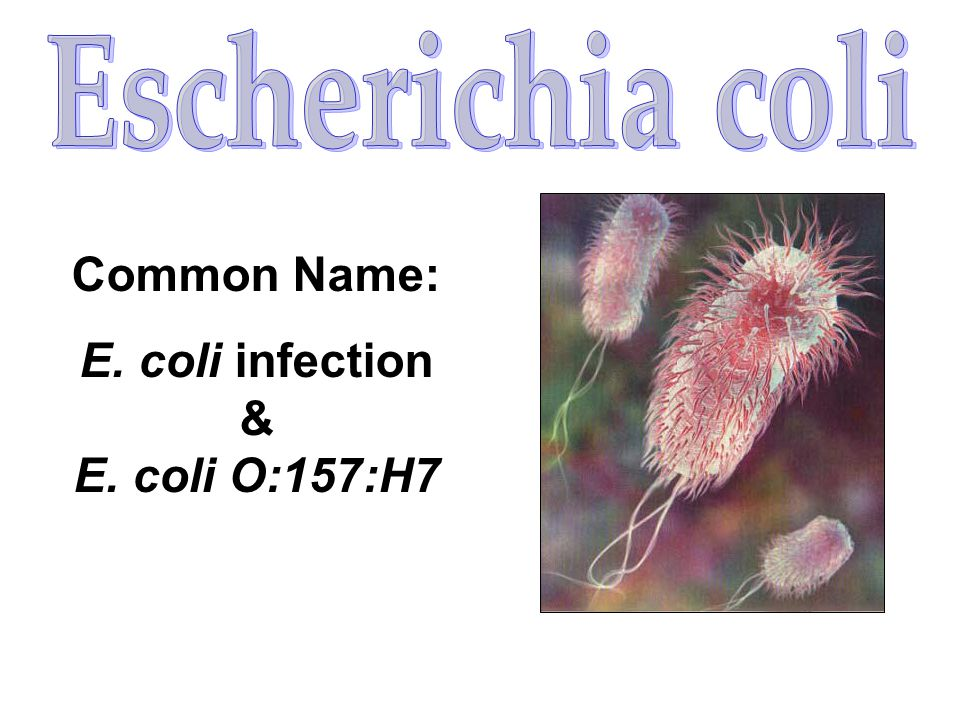E. coli infection & E. coli O:157:H7