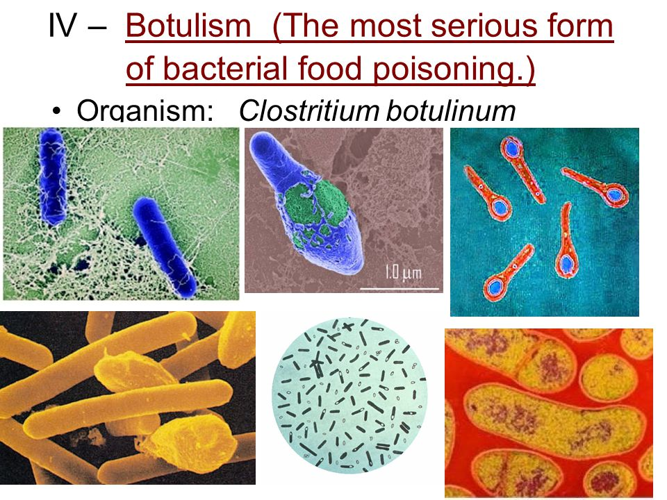 IV – Botulism (The most serious form of bacterial food poisoning.)