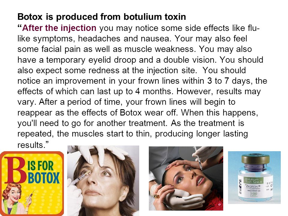 Botox is produced from botulium toxin After the injection you may notice some side effects like flu-like symptoms, headaches and nausea.