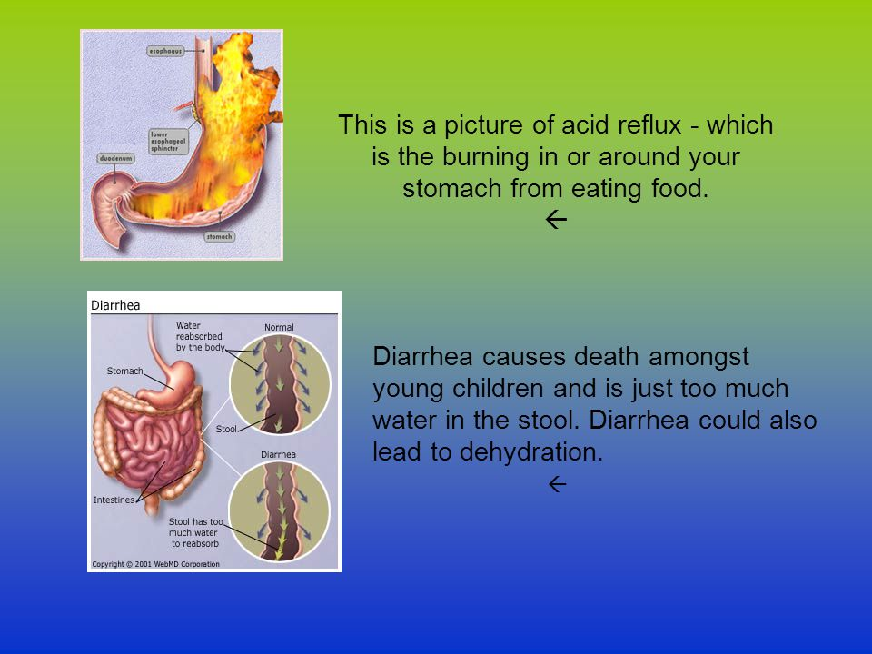This is a picture of acid reflux - which is the burning in or around your stomach from eating food. 