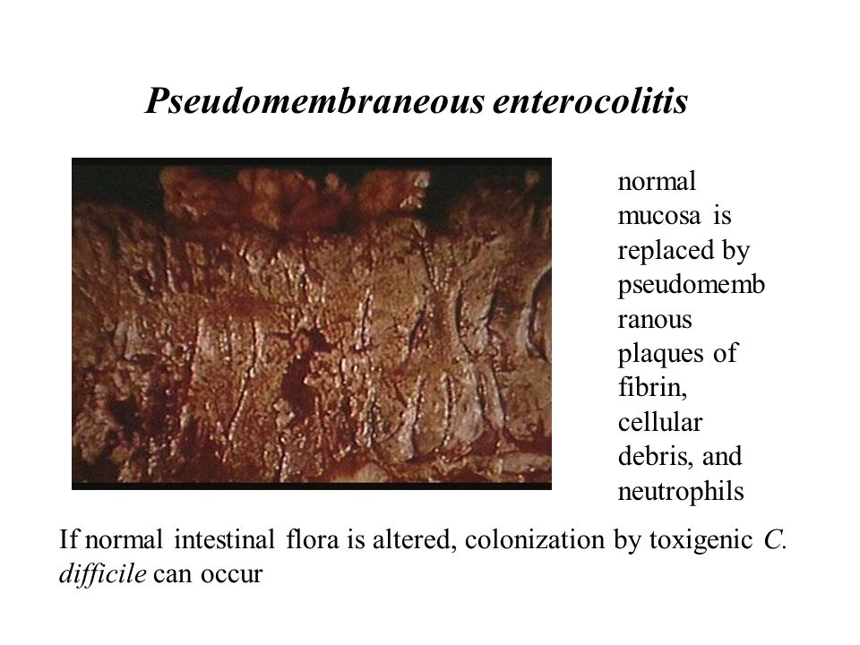 Pseudomembraneous enterocolitis