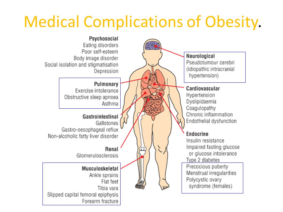 Medical Complications of Obesity.