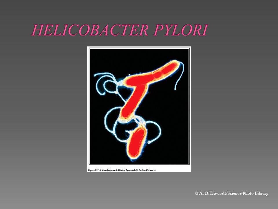 HELICOBACTER PYLORI © A. B. Dowsett/Science Photo Library