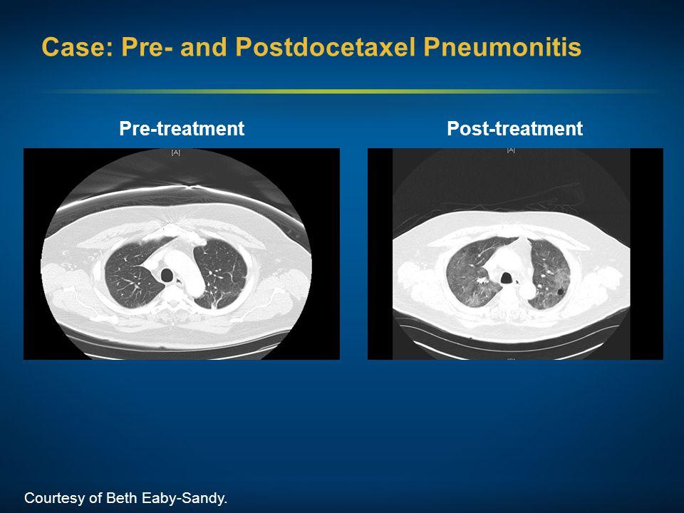 Case: Pre- and Postdocetaxel Pneumonitis