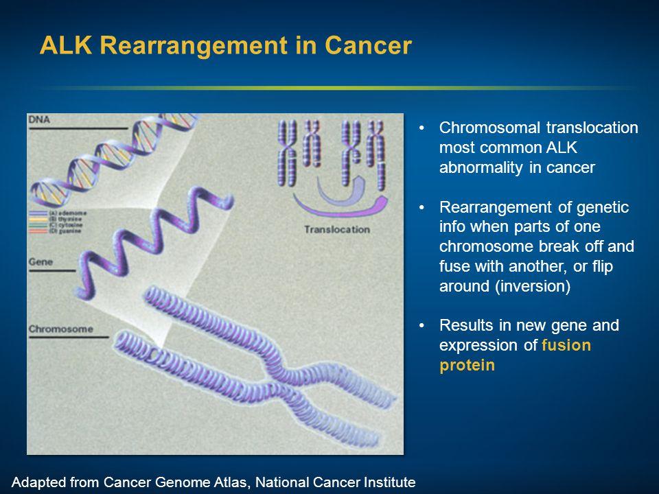 ALK Rearrangement in Cancer