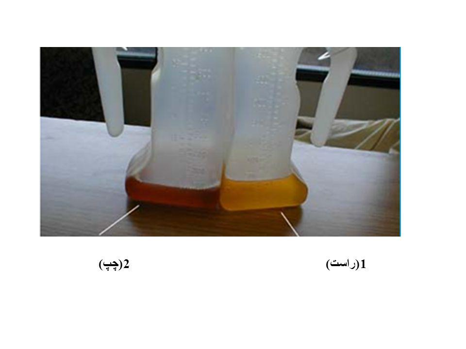 1(راست) 2(چپ)